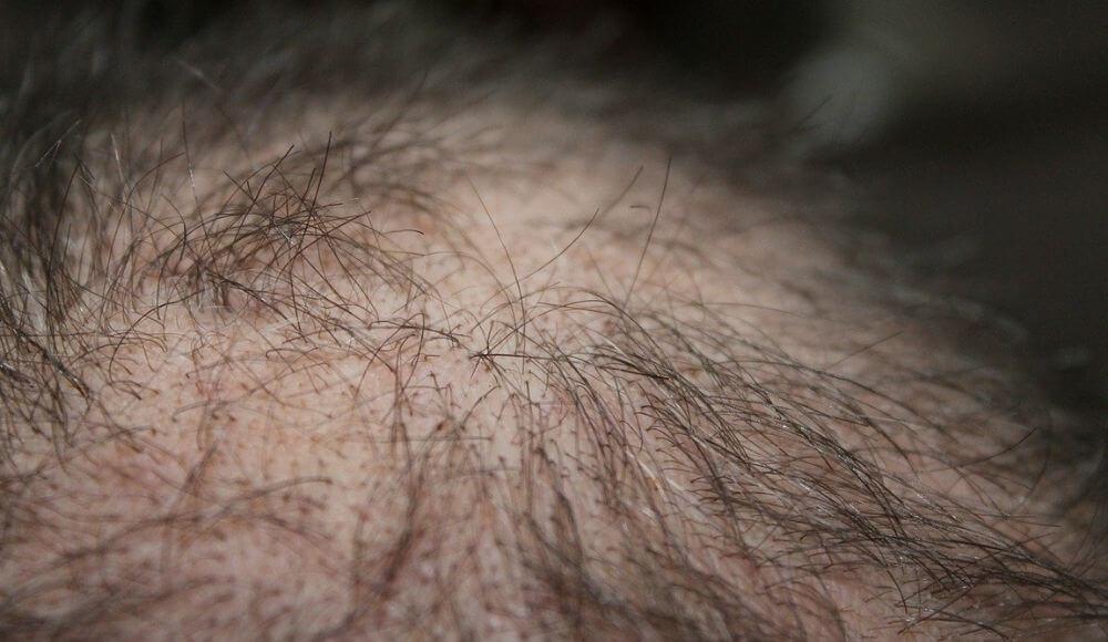 saç dökülmesi için d vitamini