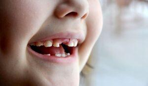 bebeklerde diş çekiminden sonra