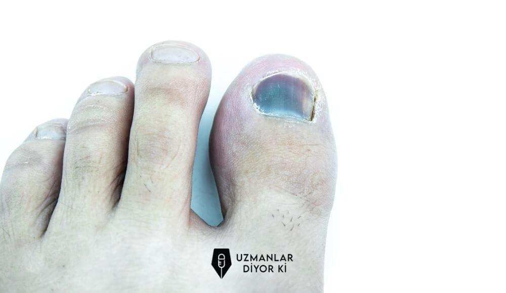 ayak tırnağında morarma nasıl geçer