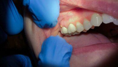 diş apsesi belirtisi