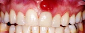 apse yapan diş