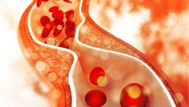 kolesterol nedir