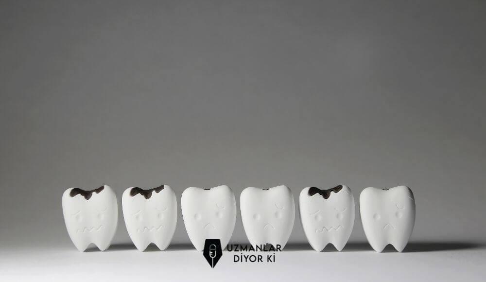 diş çürüğü nasıl oluşur