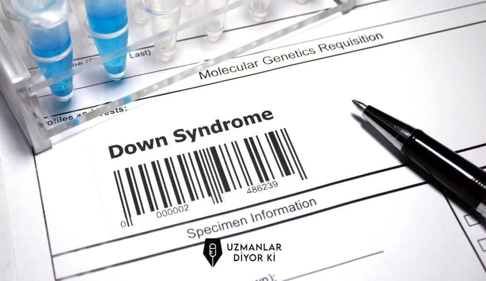 down sendromu tedavisi