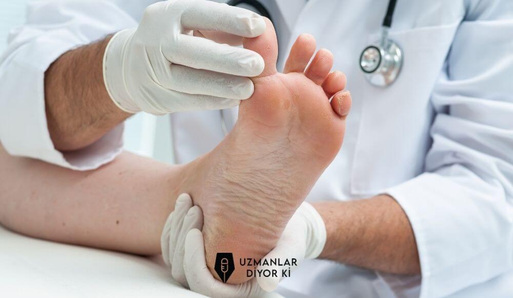 ayak-alti-soyulmasi-tedavisi