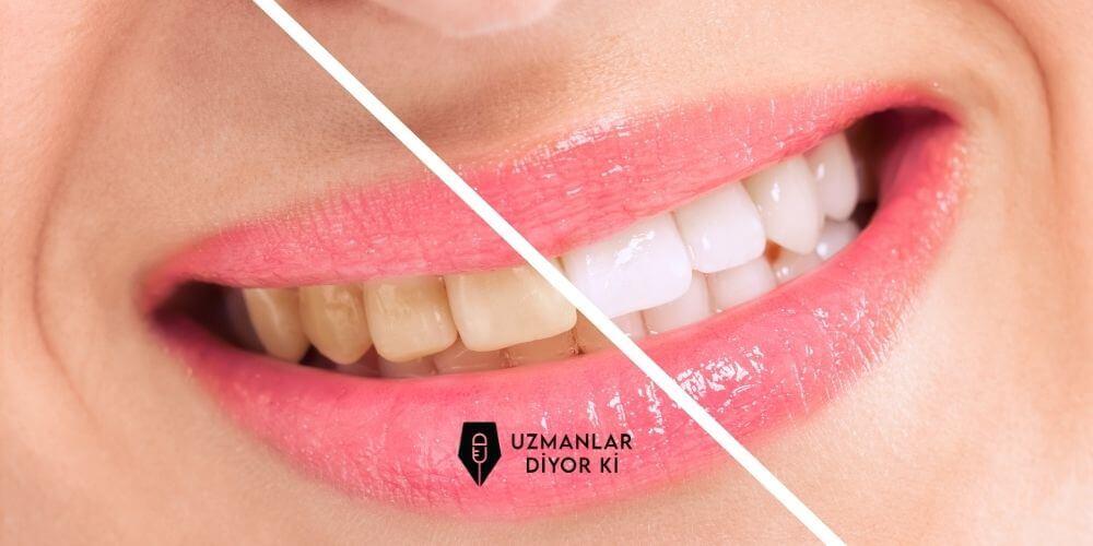 diş renklenmeleri