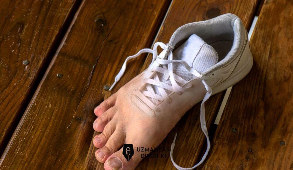 uygunsuz-ayakkabi-secimi