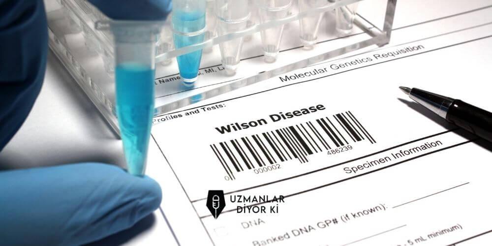 wilson hastalığı tedavisi